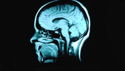 Descubren un embrión gemelo en el cerebro de una mujer estadounidense