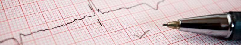 artigo-pedro-kuhn-o-eletrocardiograma-dos-concurseiros