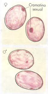 polialelia