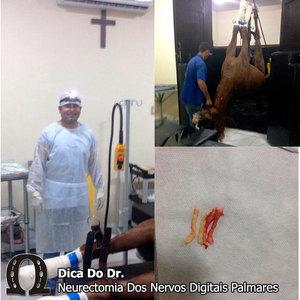 Neurecomia-dos-nervos-digitais-palmares