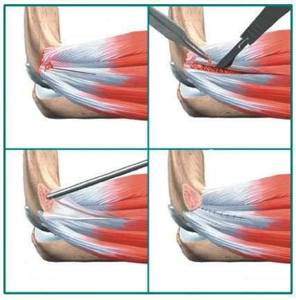 epicondilite lateral cirurgia