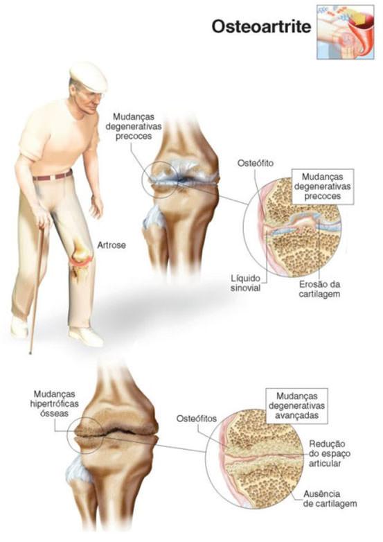 artrose de joelhos infografico