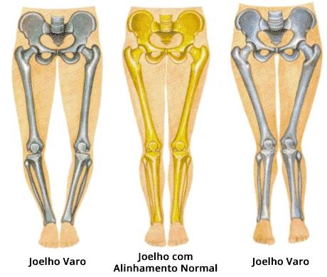 artrose do joelho alinhamento corporal fisiatria