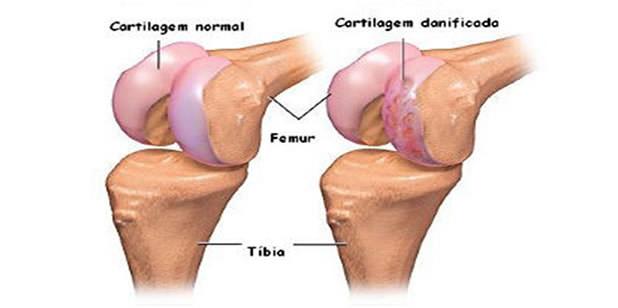 osteoartrose de joelho primaria