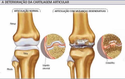 osteoartrose joelho articulacao anatomia
