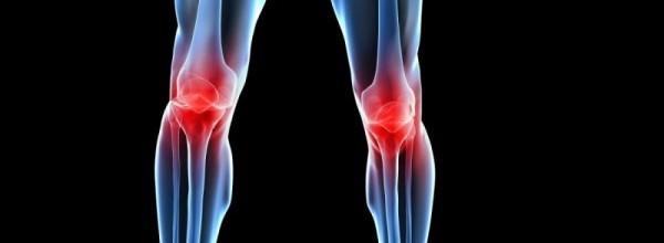 osteoartrose de joelhos dor regional