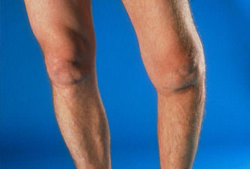 osteoartrose joelho sinais visiveis