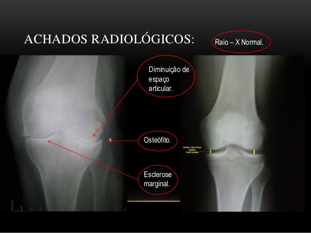 raio-x de joelho osteoartrose