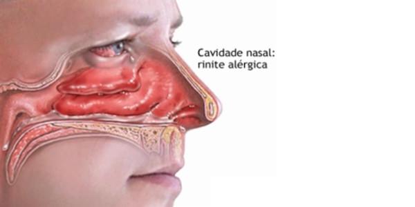 anatomia rinite alergica
