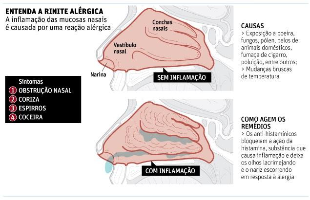 infografico rinite alergica acupuntura