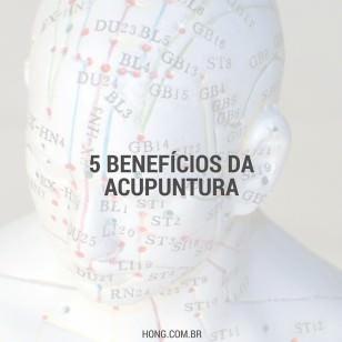 5 benefícios da Acupuntura