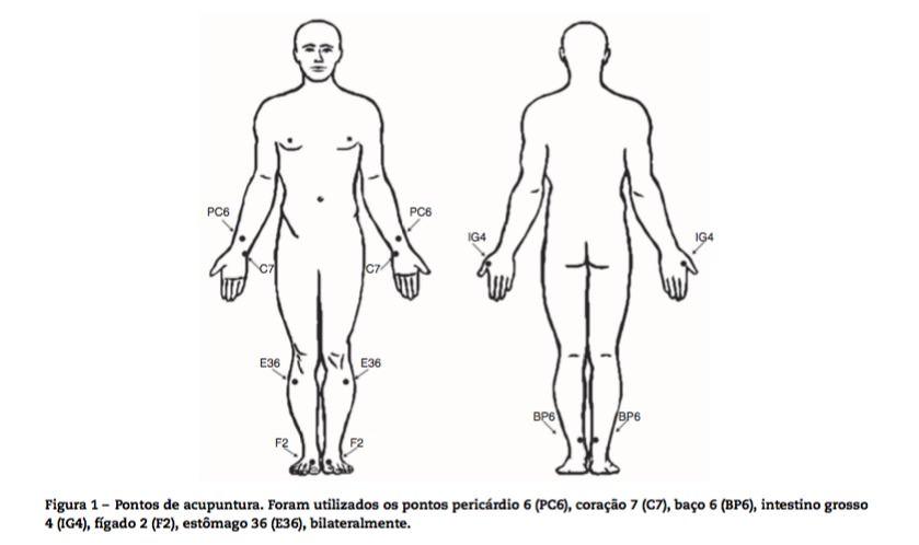 Pontos de Acupuntura para Fibromialgia