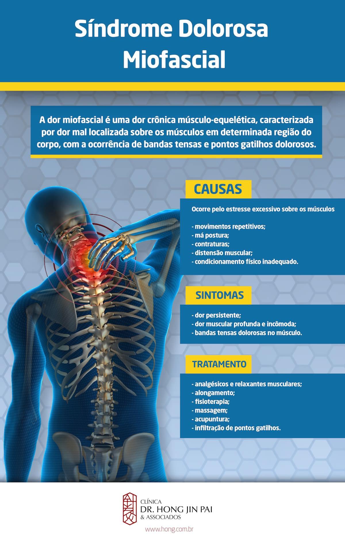 SDM sindrome dolorosa miofascial ou dor miofascial