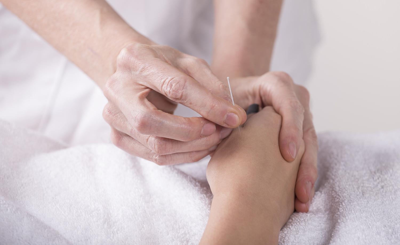 Medicina Integrativa acupuntura sao paulo