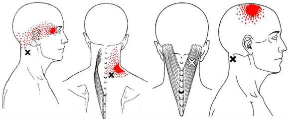 alivie pontos gatilhos de dor com acupuntura