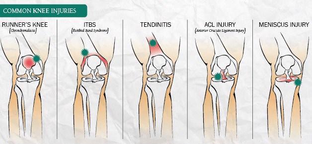 diagnostico dor em joelho femoropatelar