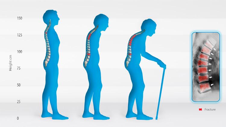 osteoporose como saber