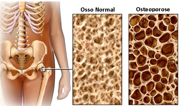osso normal e osteoporose