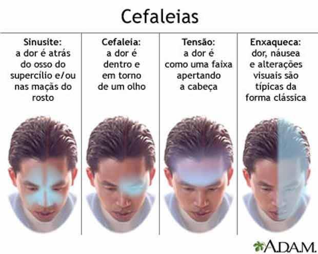 tipos de cefaleia