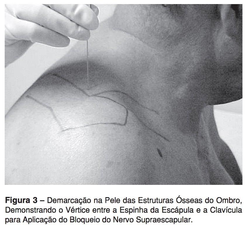 bloqueio do nervo supraescapular