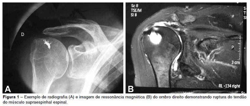 ressonancia do manguito rotador dor em ombro
