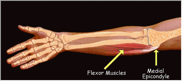 anatomia da epicondilite medial