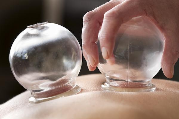 acupuntura sem agulhas ventosa