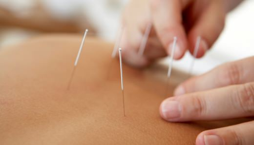 acupuntura para hernia de disco