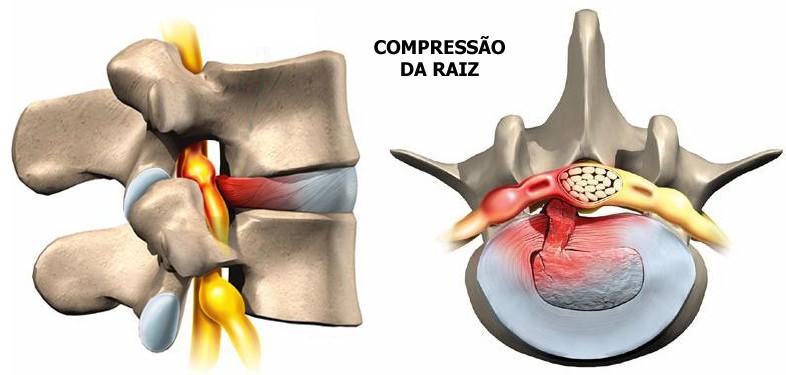 compressao da raiz hernia de disco