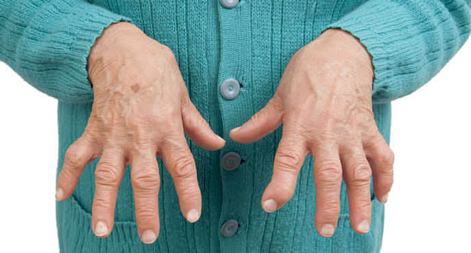aliviar dor da artrite reumatoide