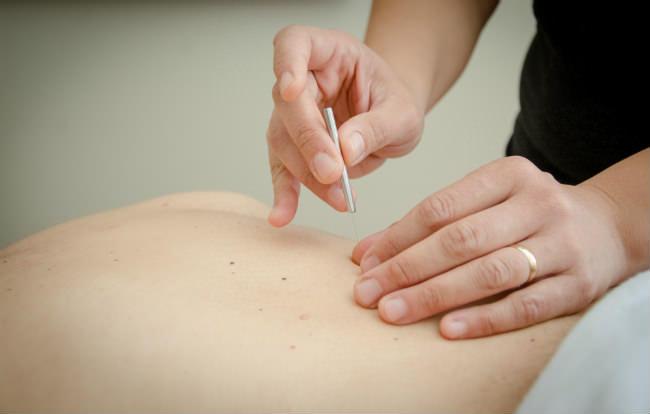 tratamento por acupuntura