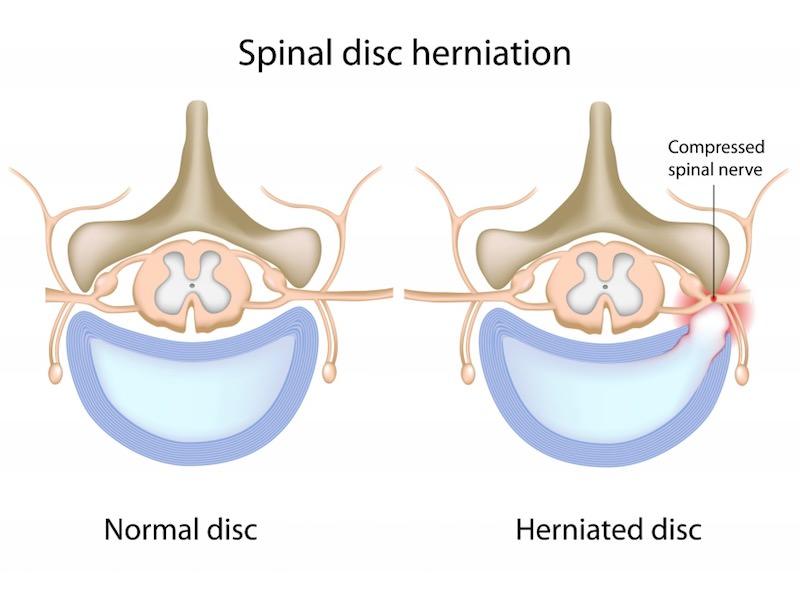 herniacao de disco com compressao de nervo