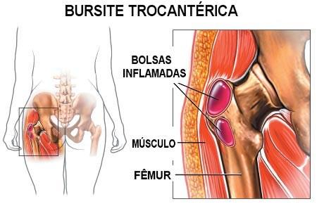 anatomia da bursite trocanterica