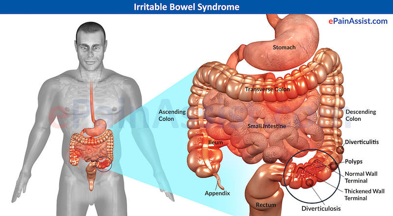 o que e sindrome do intestino irritavel e como acupuntura ajuda