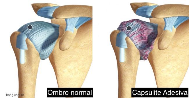 capsulite adesiva dor no ombro congelado