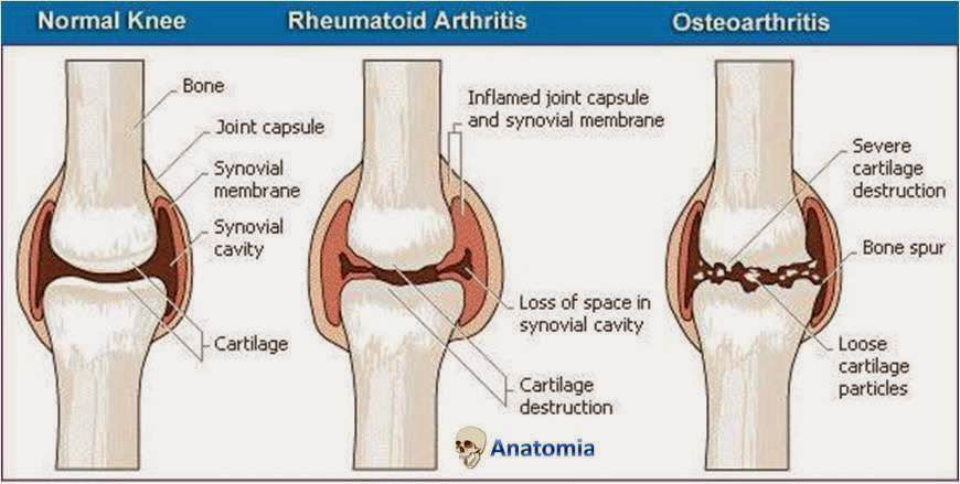 osteoartrite dor cronica