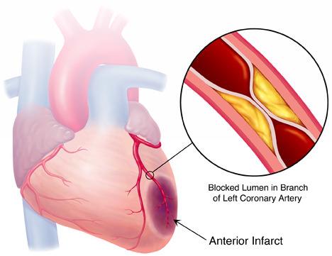 dor por infarto do miorcardio