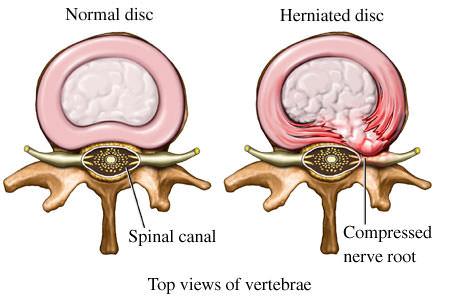 dor por hernia de disco