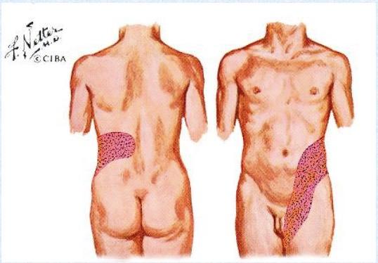 dor por calculo renal