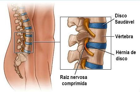 disco coluna vertebral