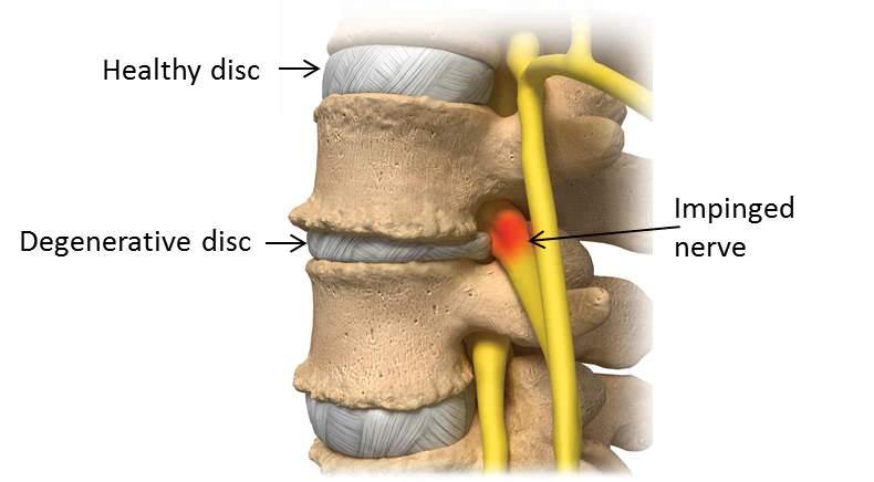 doenca degenerativa do disco lombalgia