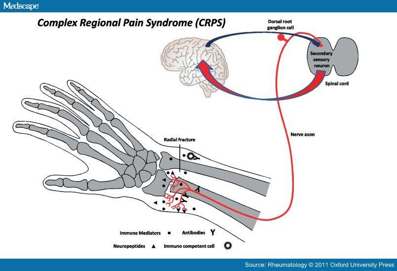 aprenda mais sindrome complexa de dor regional