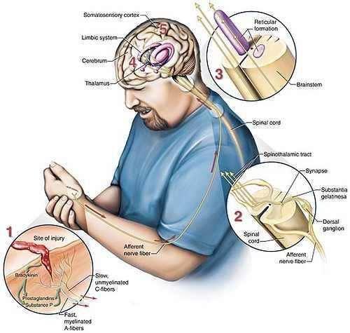 sindrome complexa de dor regional diagnostico