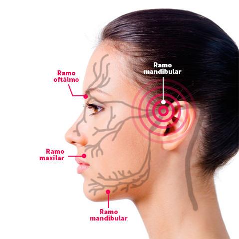 ramo oftalmico mandibular trigemeo e maxilar