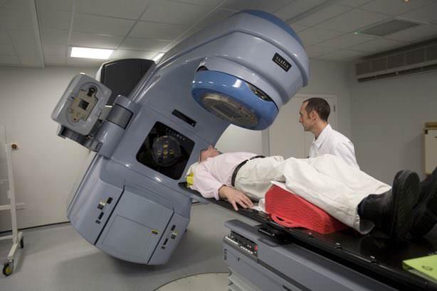 acupuntura para tratar xerostomia apos radioterapia