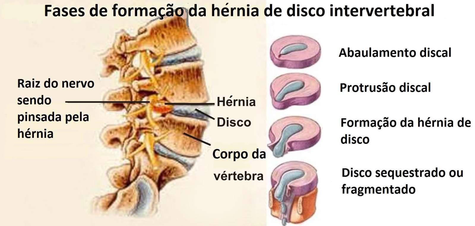fases hernia discal