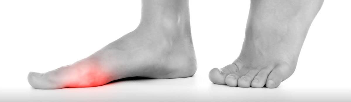 Dores no pé e o excesso de peso