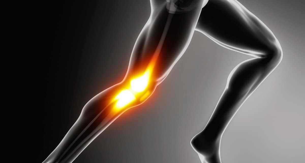 """Síndrome da banda iliotibial (ou """"joelho do corredor"""")"""