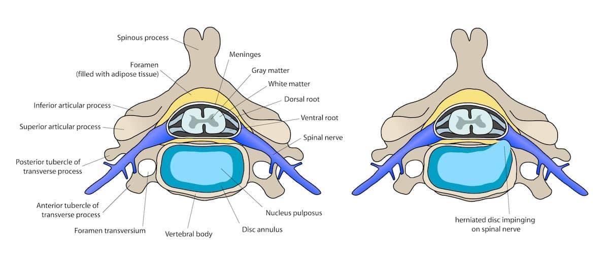 Protrusão discal: sintomas e tratamento