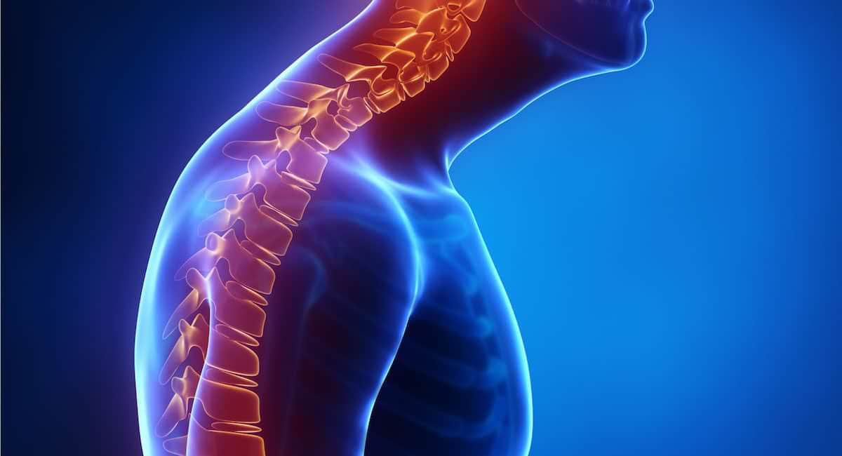 Cifose: O que é, causas, sintomas e tratamentos